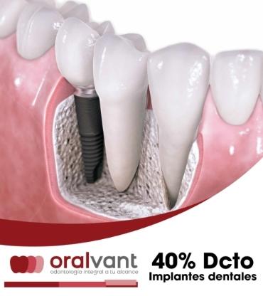Promocion 1 Oralvant Odontologia Ibague Colombia